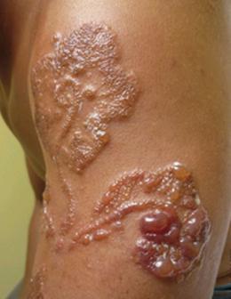 Tattoo volution serge tatoueur pierceur depuis plus de 20 ans sur perpignan - Tatouage blanc sur peau noir ...